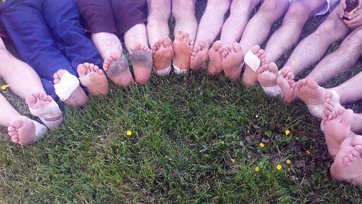 Les pieds des marcheurs, meurtris par les chaussures.